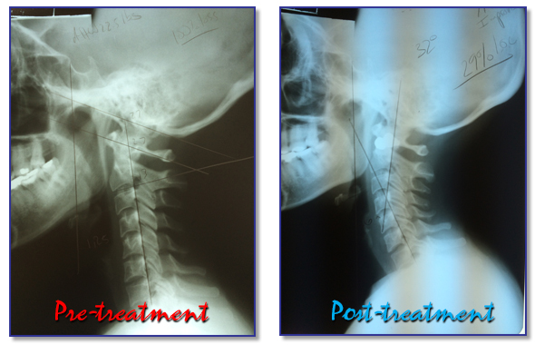 scoliosis effects and treatments to related People with scoliosis have a spine that curves to the related to back pain scoliosis in children and teens-other treatment scoliosis in children and teens.