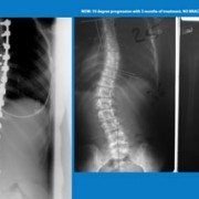 That Was Then… This is NOW! – New Hope for Scoliosis Patients